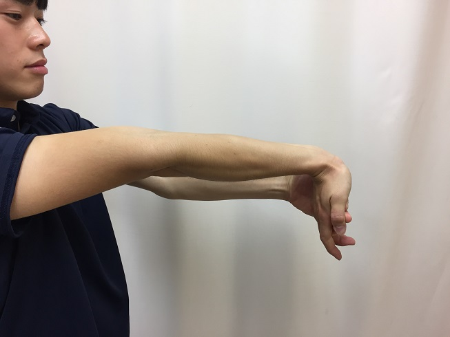 Thrower's elbow 11