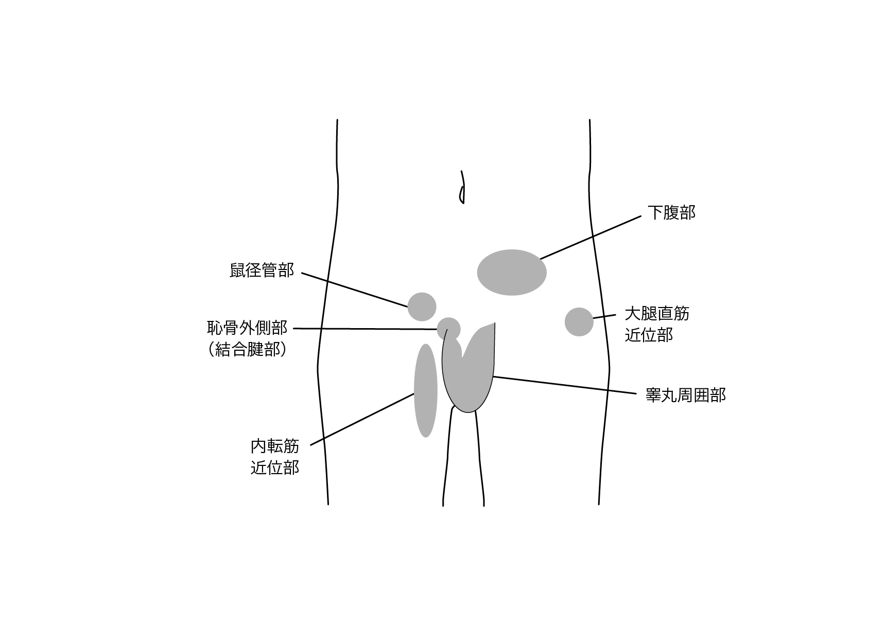 Area of pain around the groin